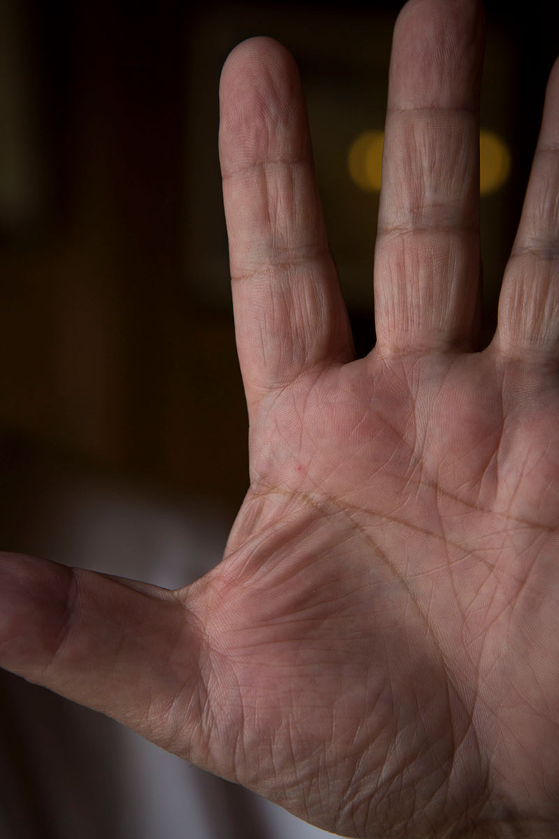 Picture of Denis Vipret's hand, a healer's hand